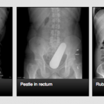 The site where doctors share X-Rays of weird things inside people's butts