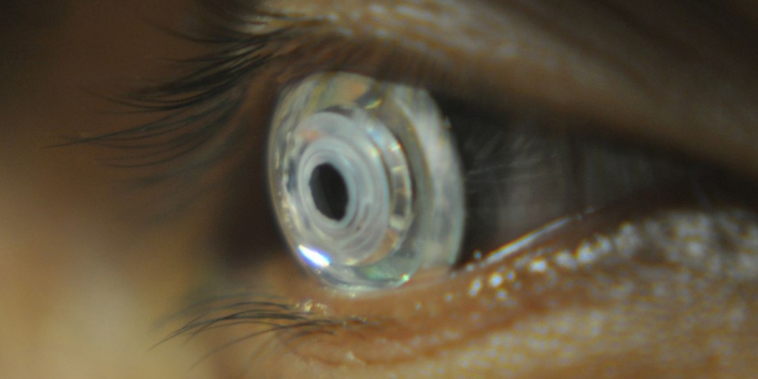 scientists-create-telescopic-contact-lens-1103223-TwoByOne