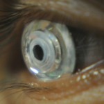Telescopic contact lenses let you zoom in on demand